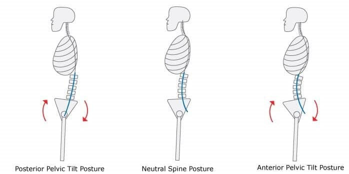 anterior-pelvic-tilt